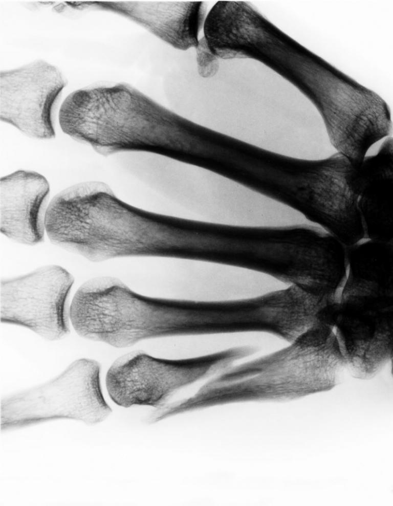 US-Statistik: Über hunderttausend gequetschte Autofahrer-Finger