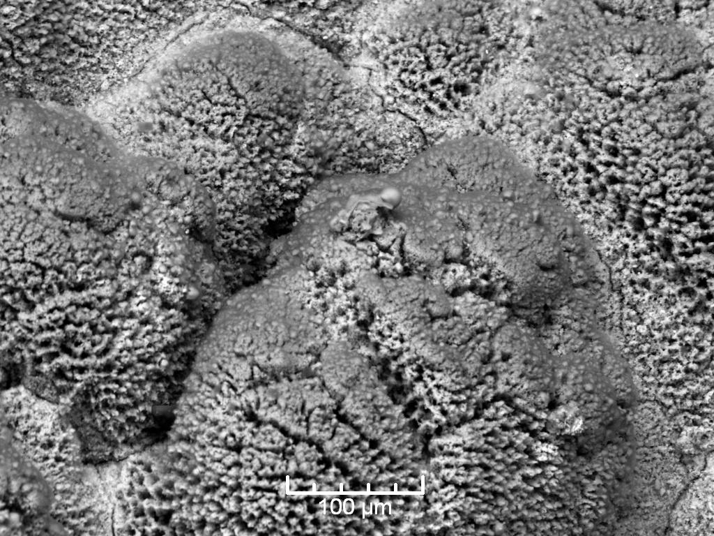 Das Elektronen-Mikroskop ermöglicht bei eine bis zu 200 000-fache Vergrößerung von Materialoberflächen.